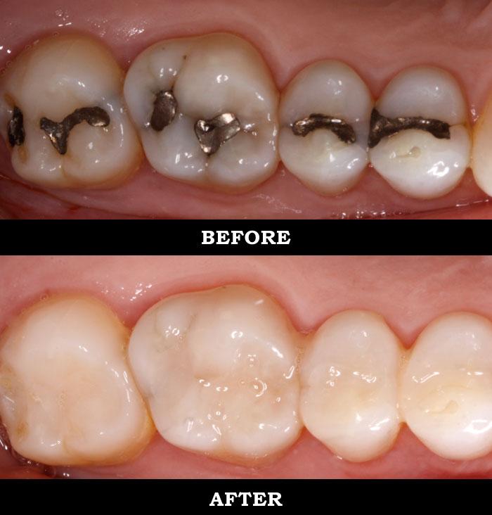 White Fillings Azure Dental Practice