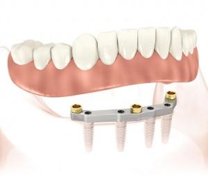 denture stabil